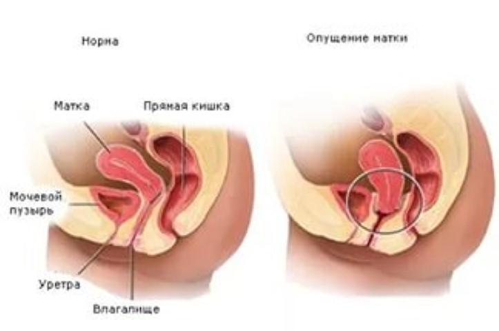 simptomi-nagnoeniya-gematomi-vo-vlagalishe